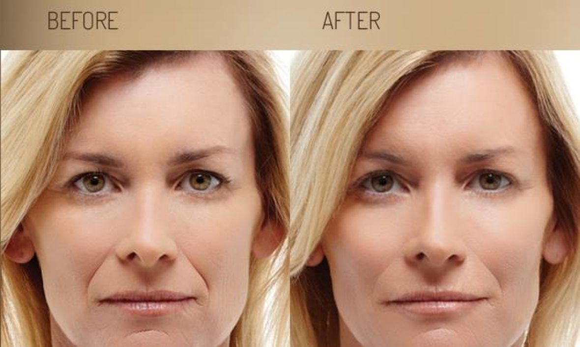Dermal Fillers - Aesthetic Cosmetic Clinic in Cirencester